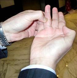 (原创)人体穴位一胳膊手部(73)手指肝穴