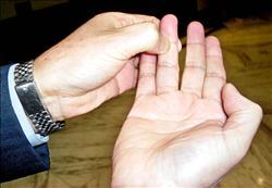 (原创)人体穴位一胳膊手部(74)手指肺穴