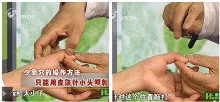 http://www.jingluoxuewei.com/d/file/geboshoubu/2015-06-27/36427fbeea281f135f87c590bd435f44.jpg