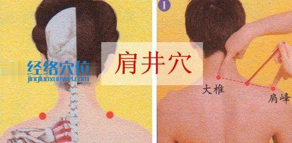 肩井穴位位置图