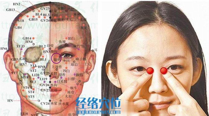 睛明穴的位置及解剖分析图