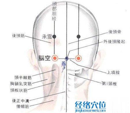 脑空穴的位置解剖分析图