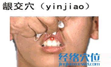 龈交穴的位置图