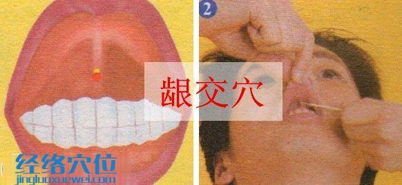 龈交穴的准确位置