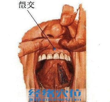 龈交穴位图