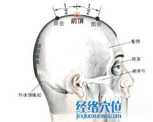 前顶穴的位置解剖分析图