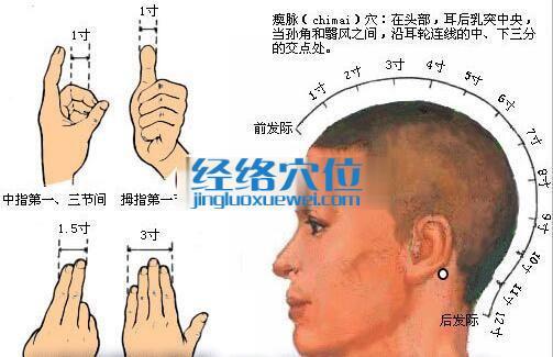 瘈脉穴的位置图