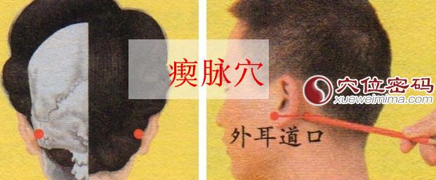 瘈脉穴的准确位置图