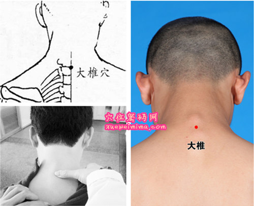 大椎穴位位置图